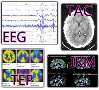 MÉTODOS DE EXPLORACIÓN CEREBRAL. EEG, TAC, TEP E IRM